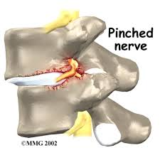 Treatment for a pinched nerve