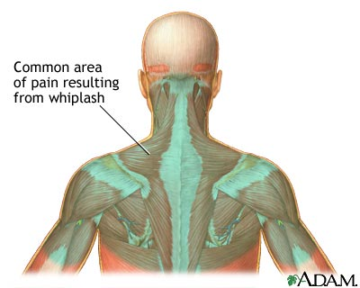 treatment for whiplash