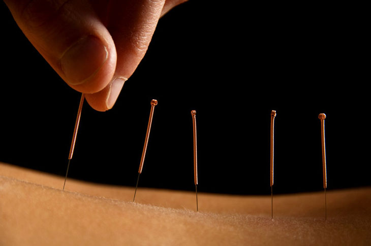 Dry needling available at New Life Chiropractic